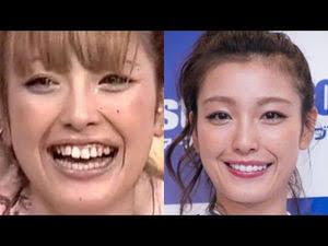 歯が綺麗な芸能人