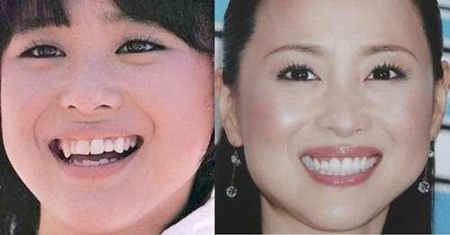松田聖子を支える歯科医の夫 愛妻家な一面は職場でも評判