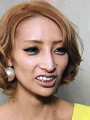 加藤紗里、ものもらいになり左目を覆う…「神様の嫌がらせ」