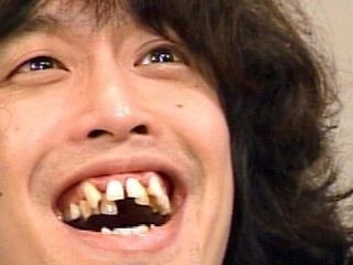 歯並び、そんなに気になりますか?