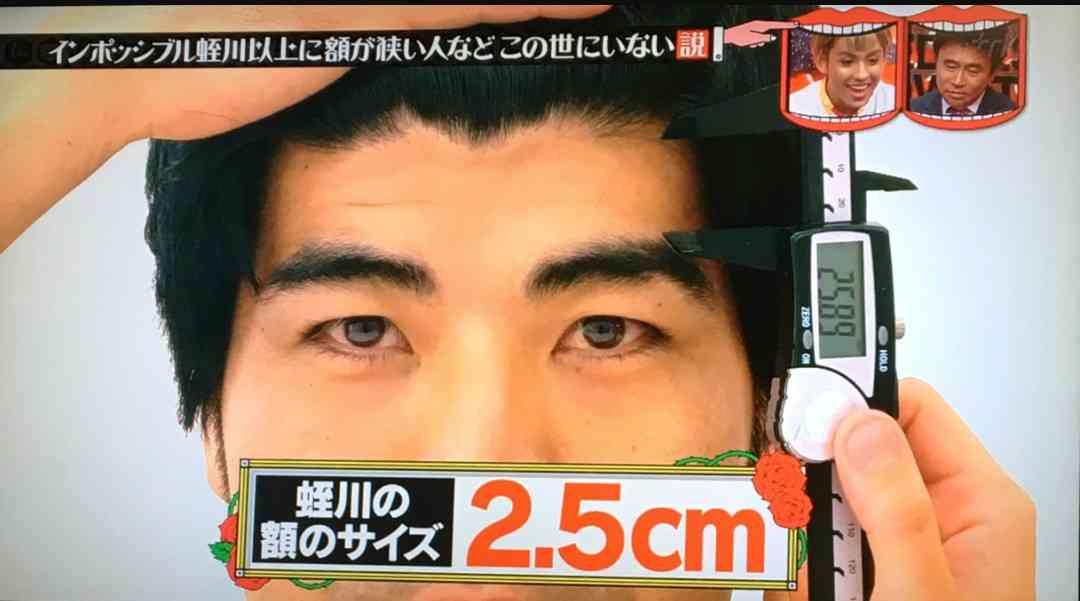 おでこの狭さに悩んでる人が苦しい胸中を吐露し合うトピ。ごまかしの効く髪型情報もあると嬉しいです。