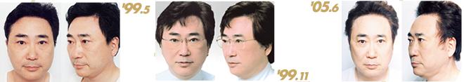高須克弥医院長、19年間で500回以上 総額費用は「10億円くらい」整形告白にスタジオ驚愕!