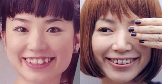 歯が大きい人