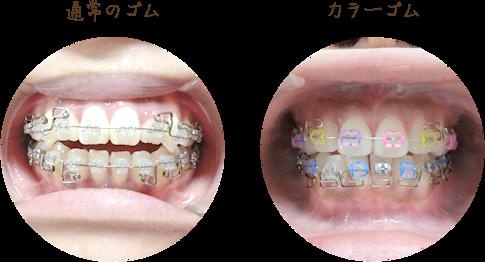歯科矯正失敗された方集まれ!