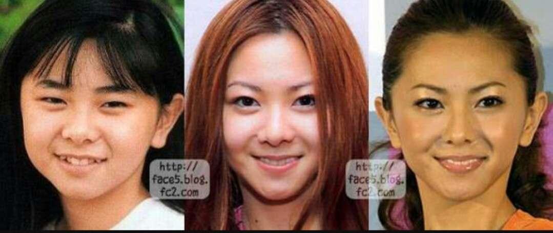 『マツコ会議』が整形している女性芸能人を暴露「国民的主演女優」「癒し系女性歌手」