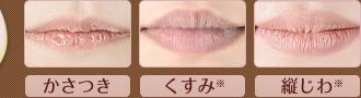 唇シワッシワの人いますか?