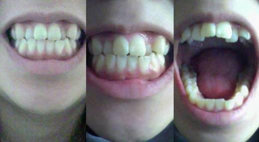 歯列矯正についての意見
