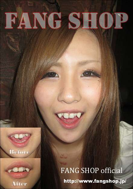 【八重歯女子集合】あなたにとって八重歯はチャームポイント?それともコンプレックス?