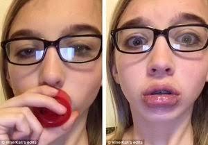 唇が厚くなる方法