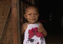 2歳で胸が膨らみ4歳で初潮、5歳で更年期障害と直面する女児(豪)