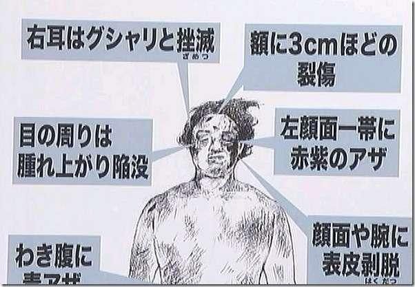 鶴竜も「ビール瓶」否定 せいぜい15発程度と証言
