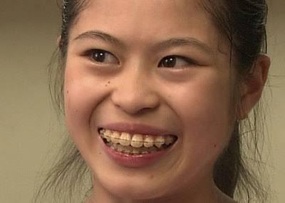 歯列矯正のメリットデメリット