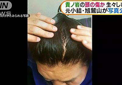 【実況】日馬富士引退会見