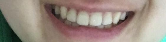 歯ぎしりが酷い人
