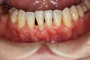 歯茎が下がってきて悩んでる人
