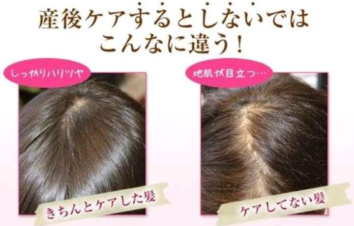 産後の抜け毛