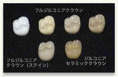 銀歯いくつある?