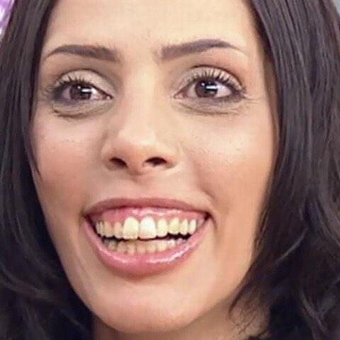 歯グキの腫れ(歯肉炎?)