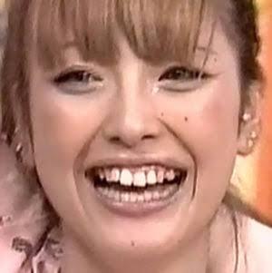 歯がギザギザの人