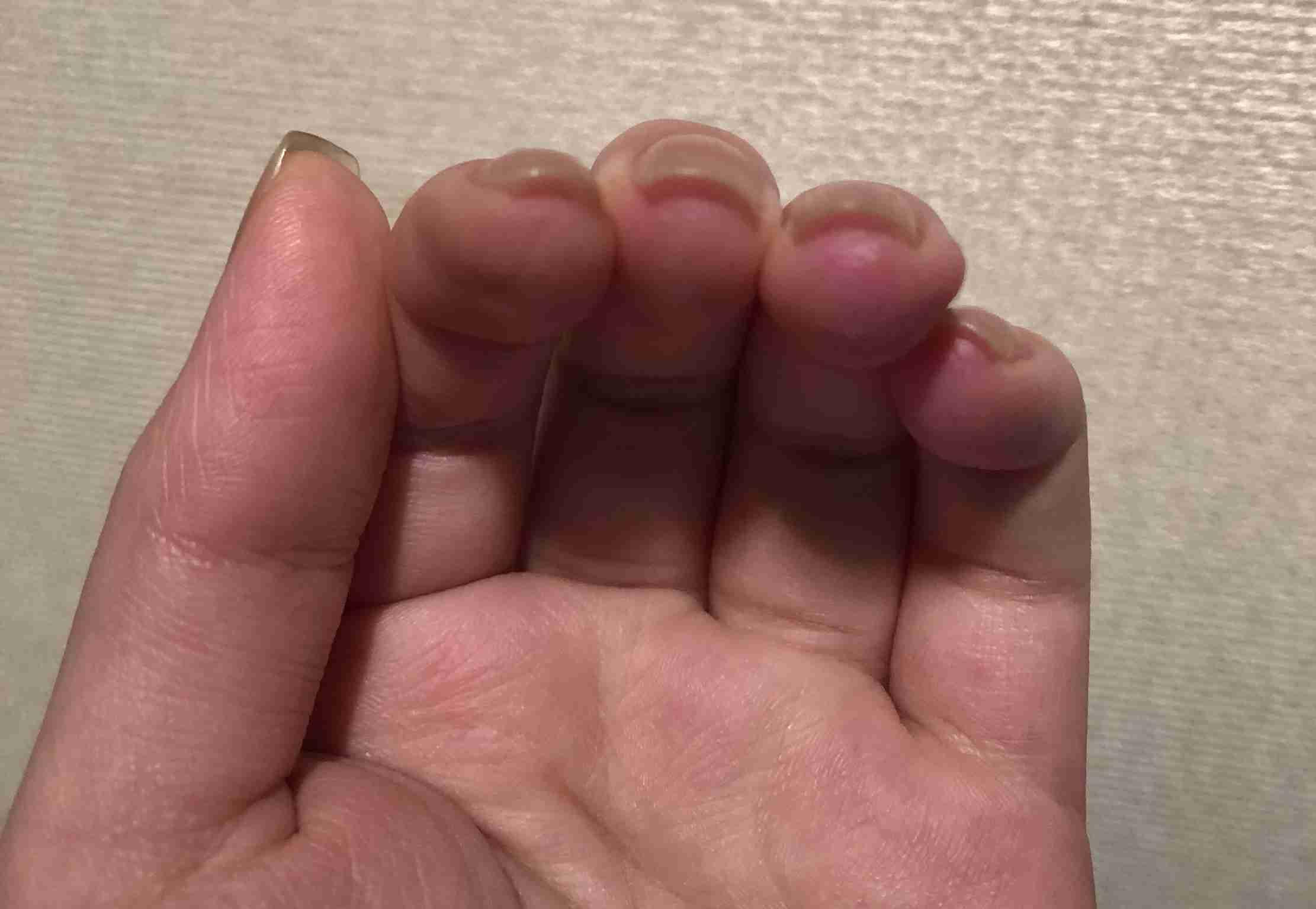 爪の形の悩み
