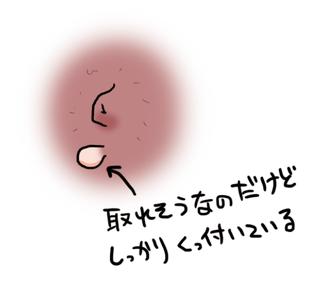 加齢による首イボ