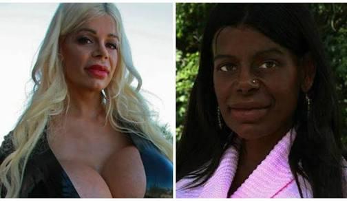 モデルに転身した白人の元CAがメラニン注射で「黒人」に