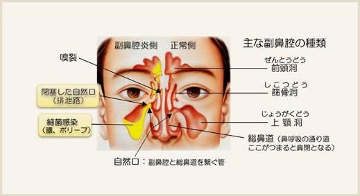 副鼻腔炎、蓄膿って治りますか?