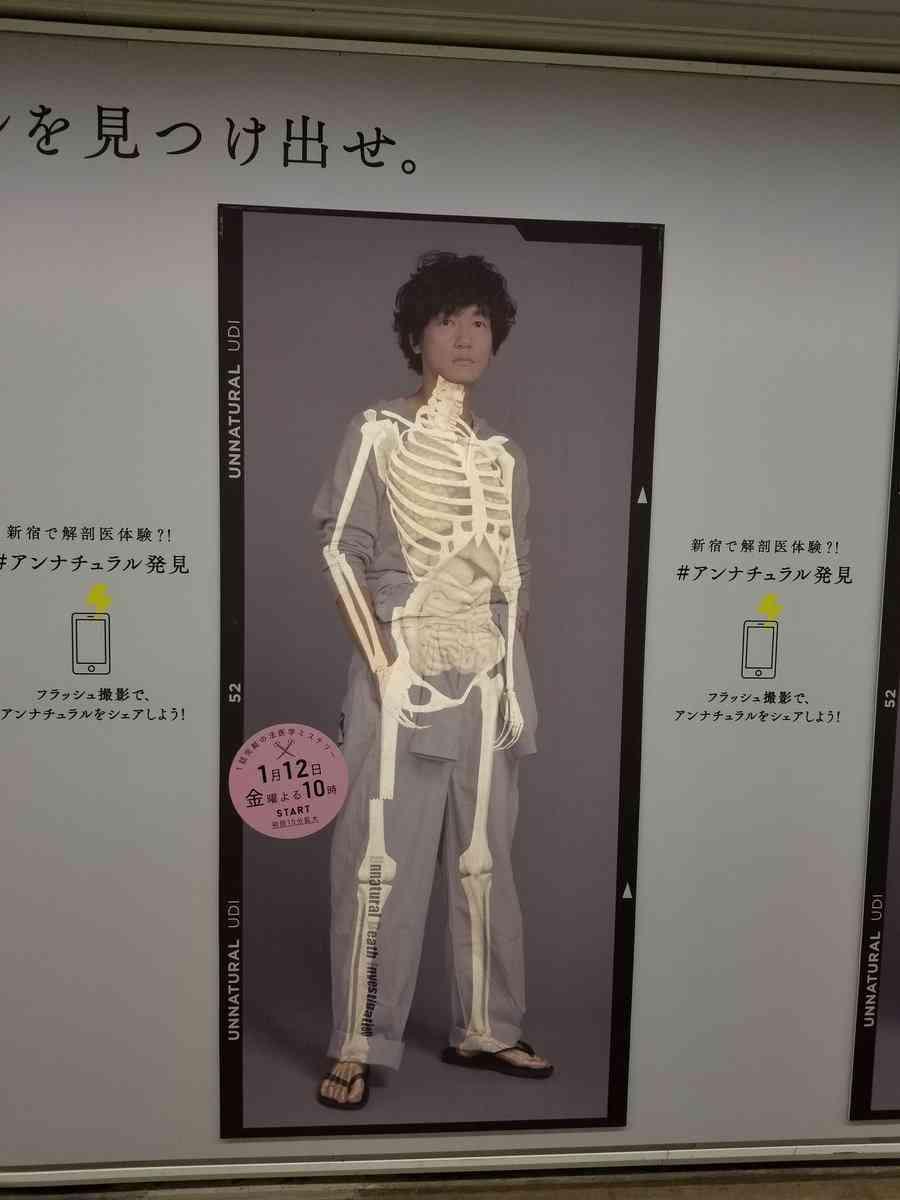 石原さとみ、窪田正孝らの骨格写真を公開 「骨さえきれい」と反響