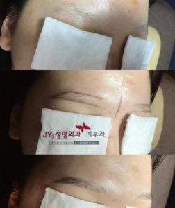 眉毛の悩み