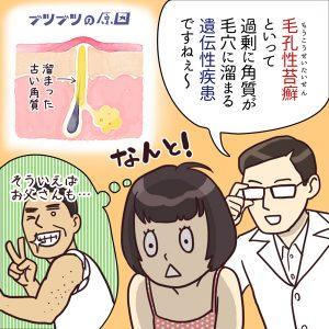 毛孔性苔癬の悩み