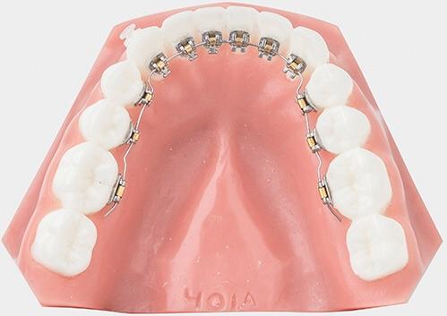 歯列矯正中、辛かったこと