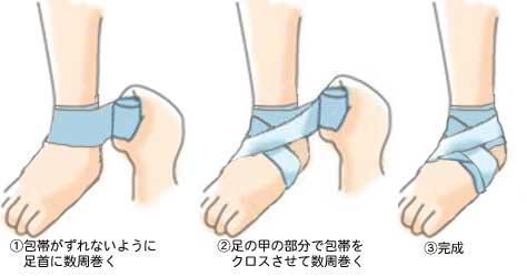 へるぷ!捻挫の対処法