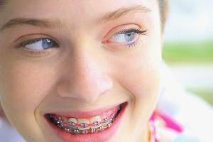 歯列矯正しながらの接客はどう思いますか?