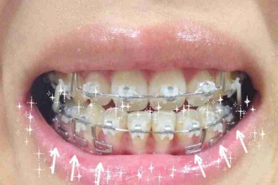 歯列矯正を迷ってます