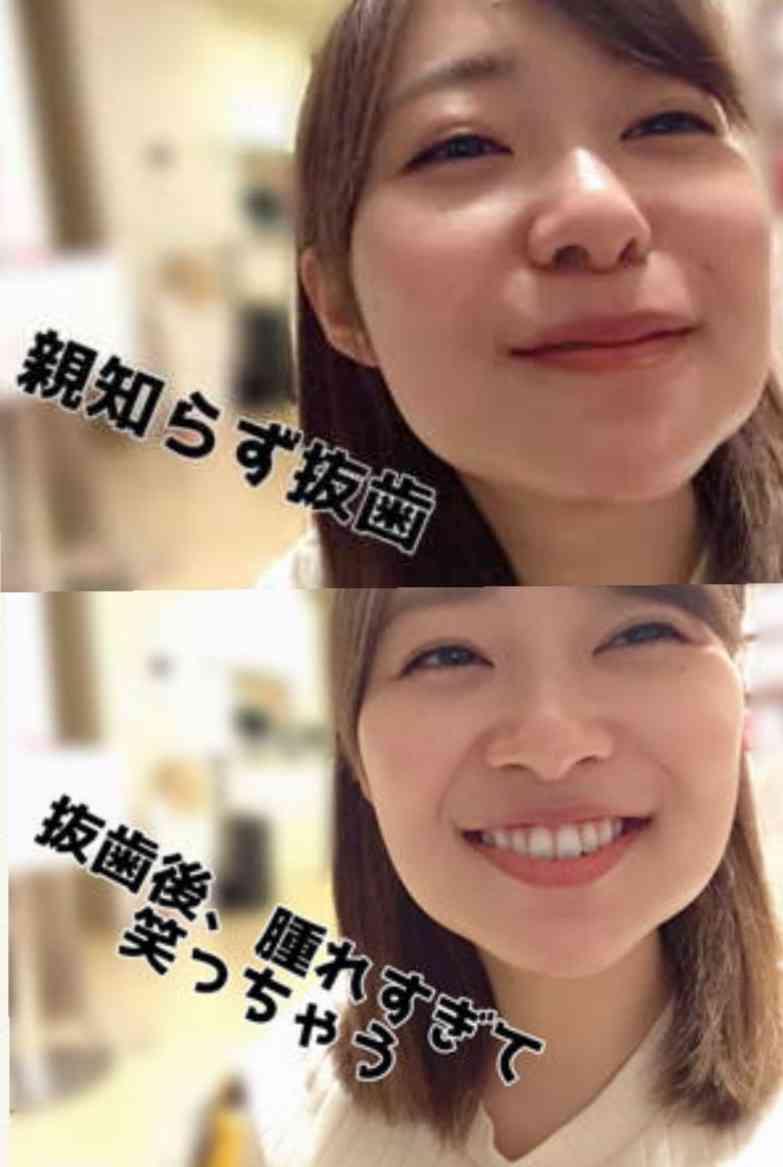 有吉弘行が元共演者の変貌ぶりに驚愕「全然顔違うから!」
