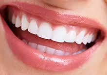 非抜歯で歯列矯正