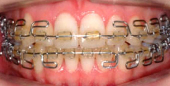 マウスピースタイプで歯列矯正してる方