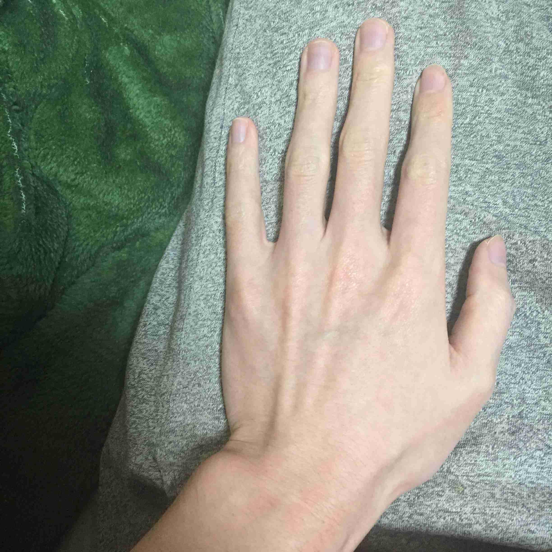 手のシワをなくしたい