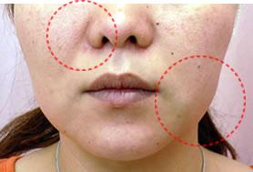 顔のリンパマッサージ効果ありますか?