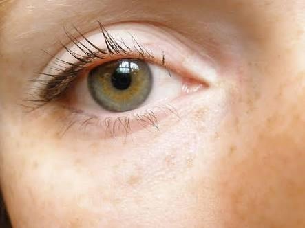 目の色素が薄い人あるある