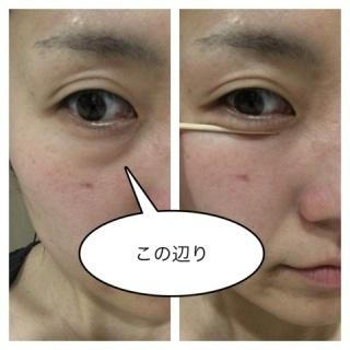 【影クマ】眼輪筋トレーニング【黒クマ】