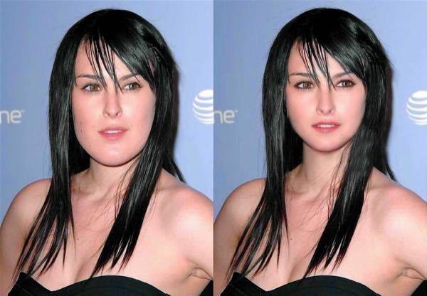 魔女と呼ばれいじめ受けた「しゃくれ美女」整形手術で超絶美人へ!