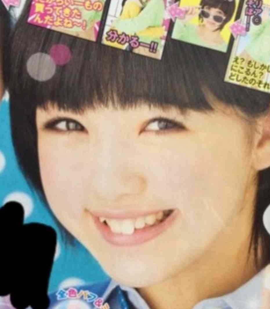 藤田ニコル、歯列矯正開始を報告