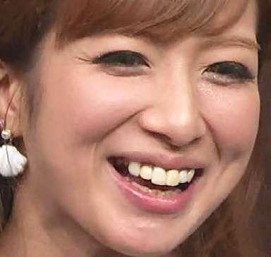 マツコ「歯がない人は幸せそう」発言の真意 「歯を気にするのは他者の目を気にしながら生きているっていう証」