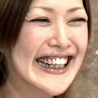 歯茎が黒い人