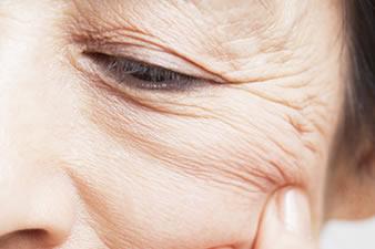 人の顔にシミがあるのって気になりますか?