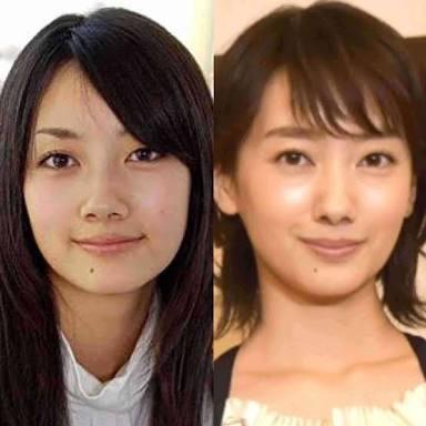 菜々緒、波瑠、木村文乃の新・主演女優対決に高須院長「仮に彼女が整形だとしたら」