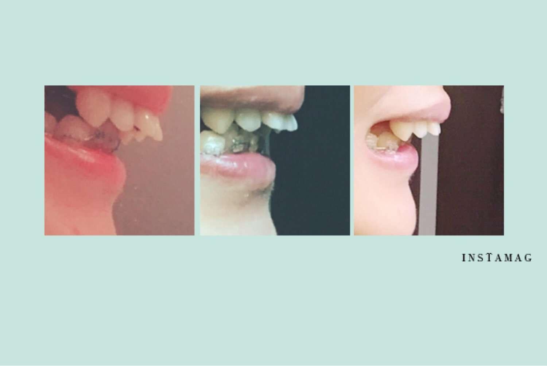 前歯がでかい人