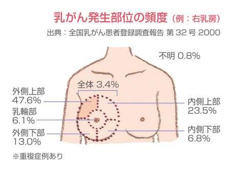 乳がんかも…不安を持ってる人・経験したことがある人