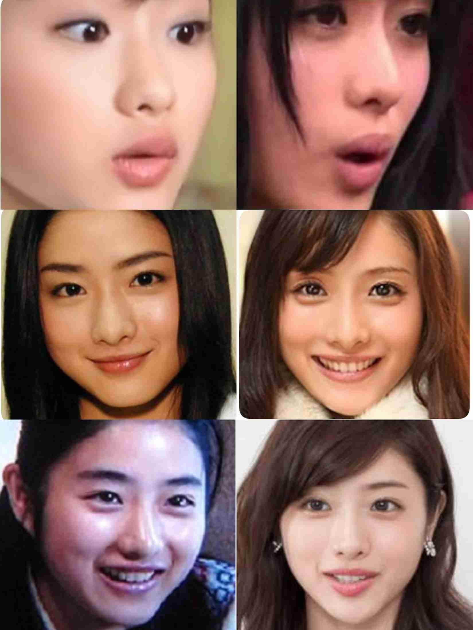 「鼻にプロテーゼの線がくっきり」演技が頭に入らないくらい鼻の形が気になる美人芸能人たち!